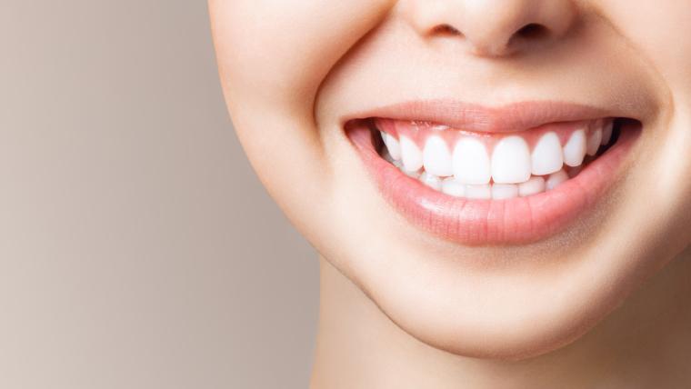 Instrucciones blanqueamiento dental en casa